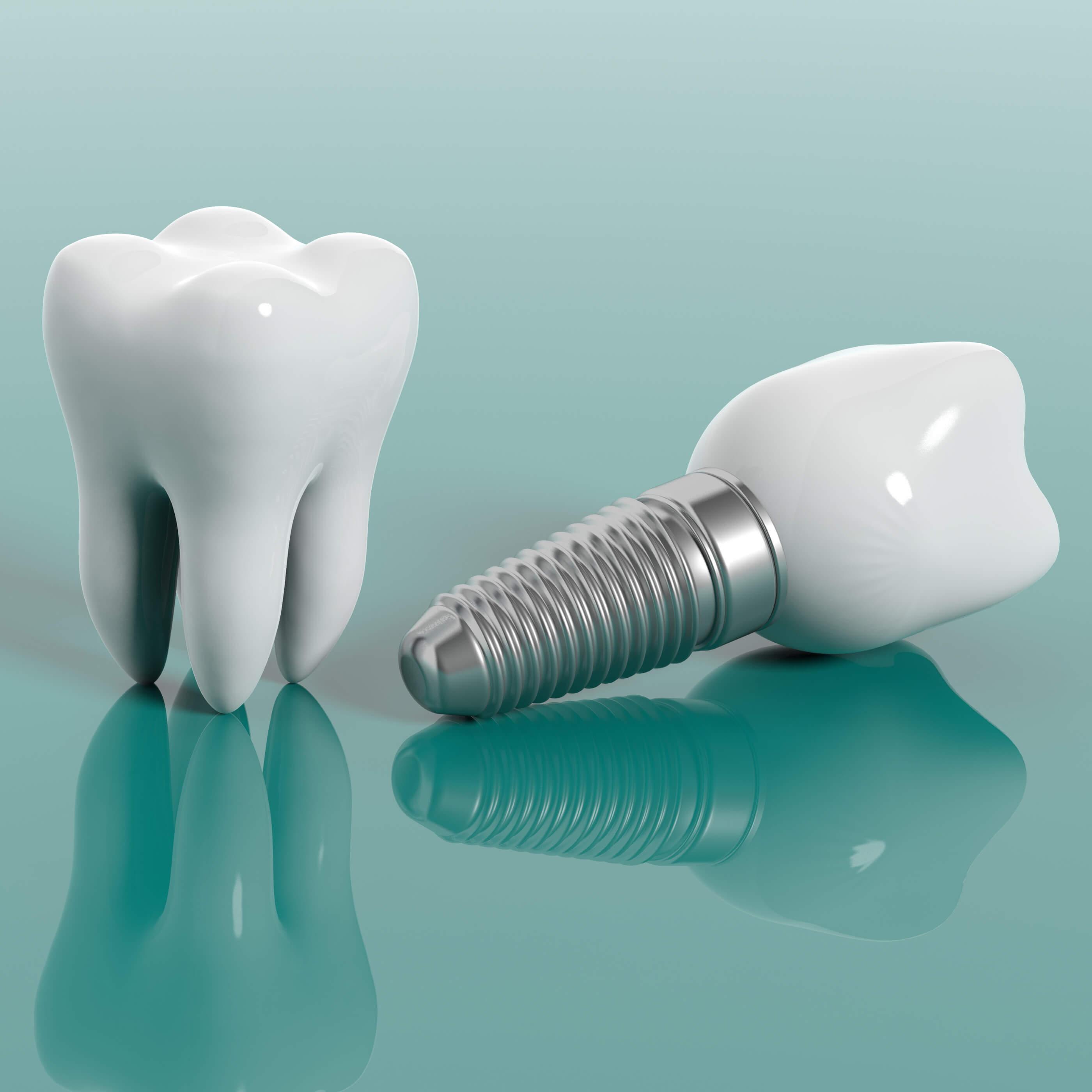 Implantologie2