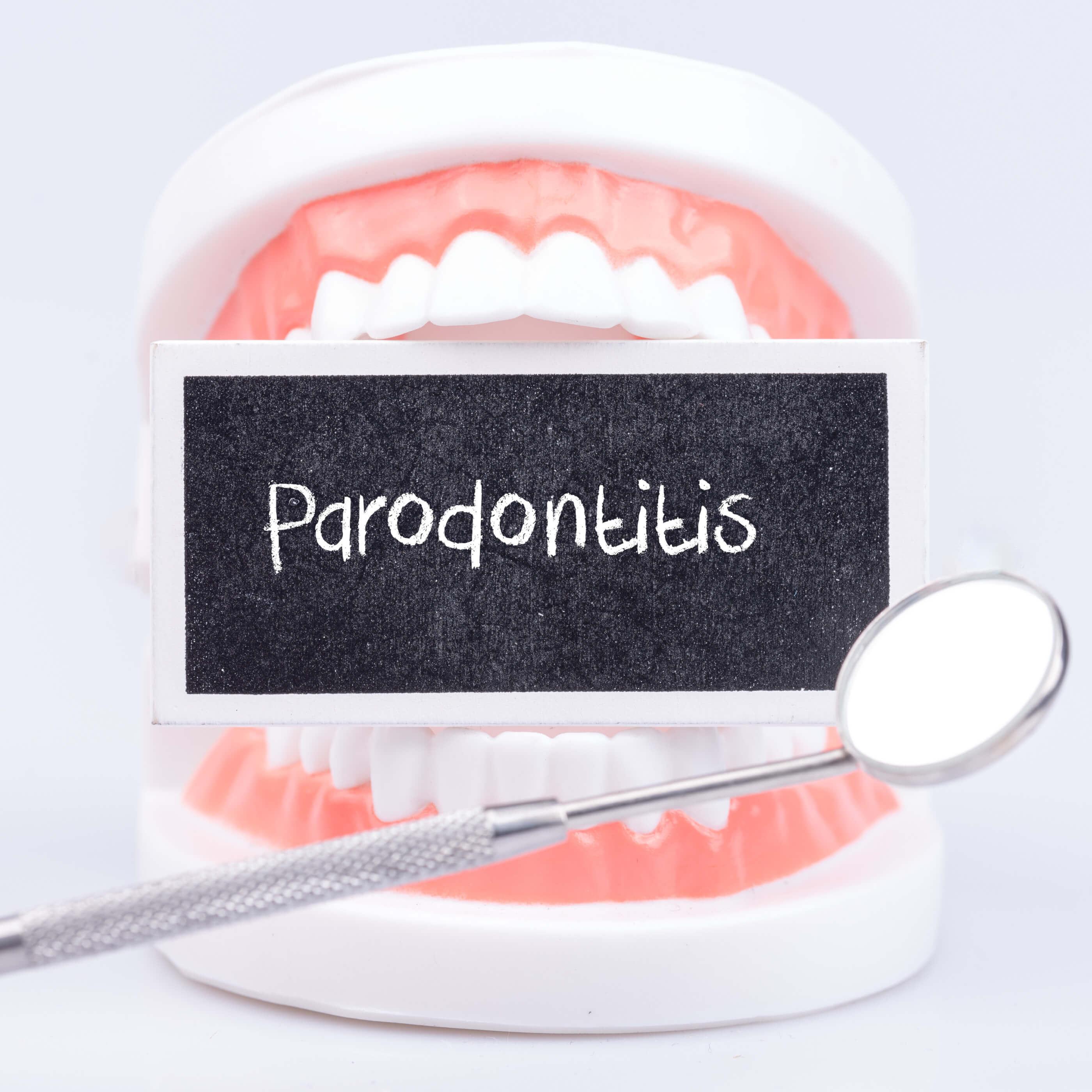 Parodontosis2